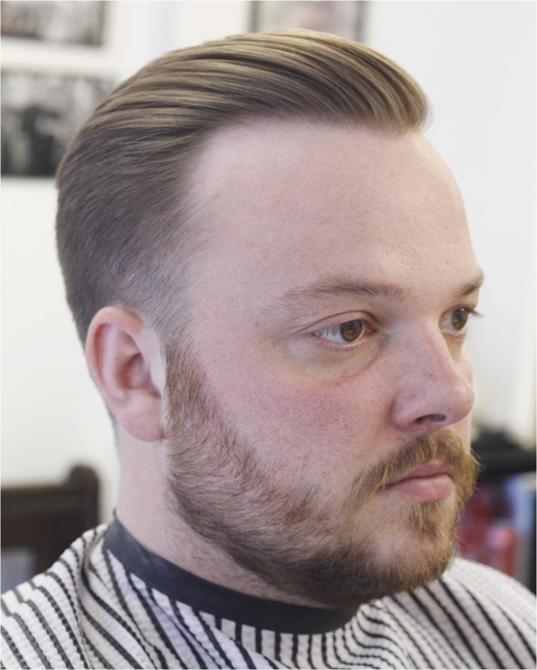 receding hairline hairstyles