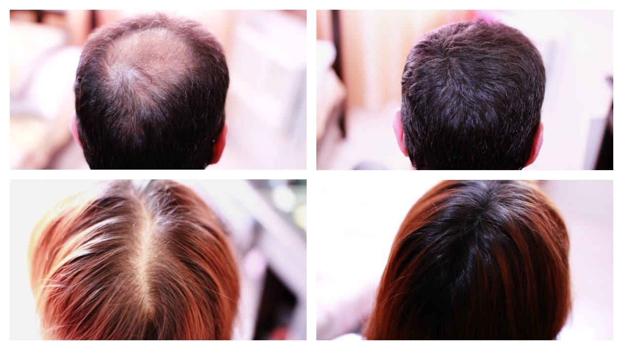 How to Cover Up Hair Loss Bald Spots Thinning Hair Receding Hairline Effectively A MUST SEE