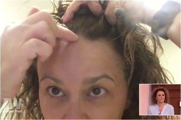 Nadia Sawalha told this week how she is losing her hair Image Supplied by WENN