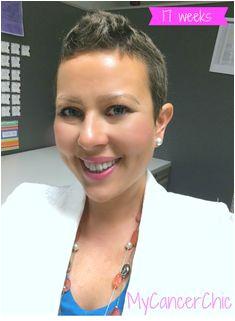 17 Weeks Post Chemo Hair Growth Hair Regrowth Hair Loss Curls Cancer