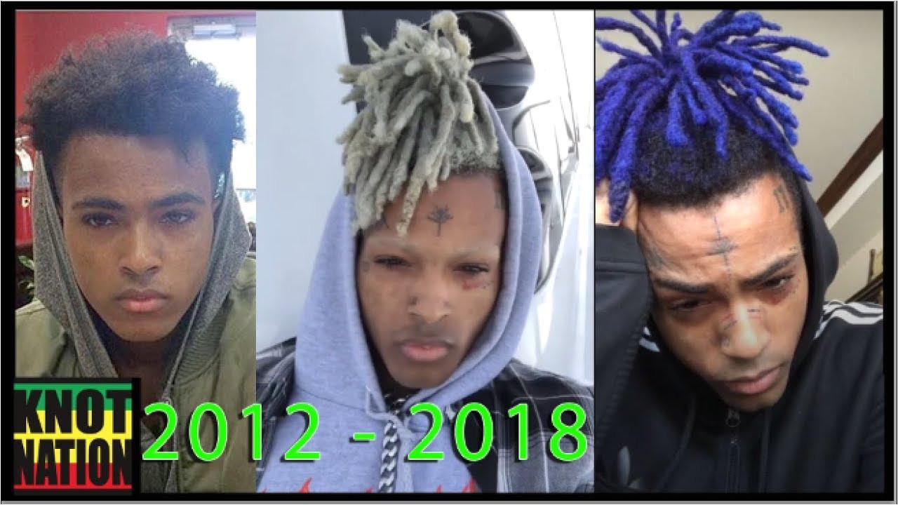 Evolution of XXXtentacion Dreads 2012 2018