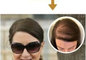 Hairstyles to Cover Bald Spots for Women 12 Best Female Pattern Baldness Images On Pinterest In 2018