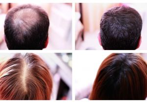 Hairstyles to Cover Bald Spots for Women How to Cover Up Hair Loss Bald Spots Thinning Hair Receding