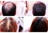 Hairstyles to Cover Up Hair Loss How to Cover Up Hair Loss Bald Spots Thinning Hair Receding